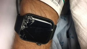 Apple Watch Saves Mountain Biker's Life After Crash By Alerting Emergency Services